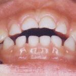 6歳時点で注意すべき歯列に悪い習慣