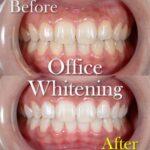 歯を白くしたい人はぜひ読んで下さい。